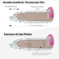 *PROMO - Capa Peniana Dragão de 12cm Para 13cm (16780) - Translúcido